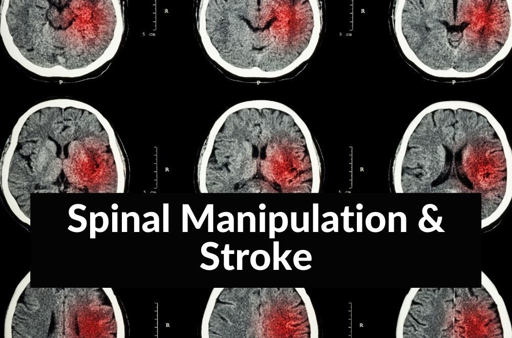 """Image for """"Do chiropractors cause stroke"""" blog post"""